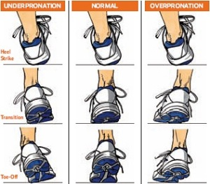 Under pronation is another word for Supination.