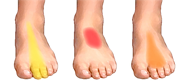Top Of Foot Pain Running Shoes